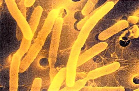 Так выглядят под микроскопом бактерии