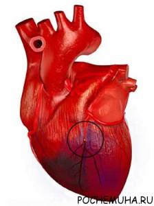 Сердечная астма: что это?
