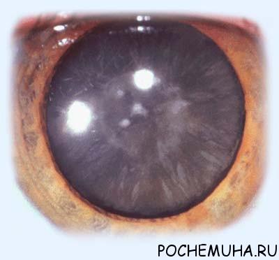 Катаракта глаза. Лечение и профилактика