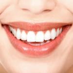 Домашнее отбеливание зубов и другие способы сделать зубы белыми