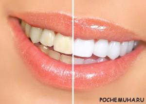 Можно  ли отбелить зубы в домашних условиях?