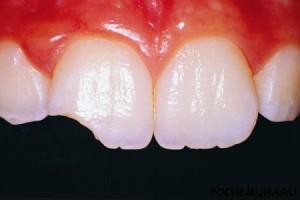 Что делать, если откололся зуб?