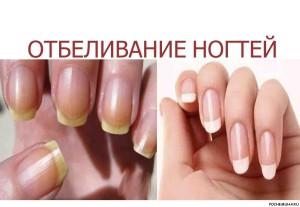Как можно отбелить кончики ногтей?