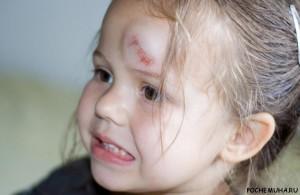 Что делать, если ребенок ударился головой?