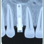 Когда в Москве следует обращаться за имплантацией зуба?