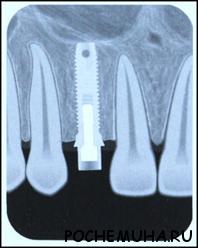 Когда в Москве следует обращаться за имплантацией зуба