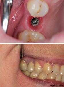 Импланты зубов – преимущества и недостатки