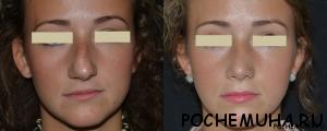Ринопластика носа. Где лучше сделать